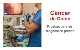 Pruebas cáncer de colon colonoscopia Hospital Sevilla Cruz Roja